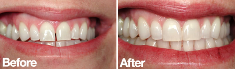 Cosmetic Dentistry- bonding