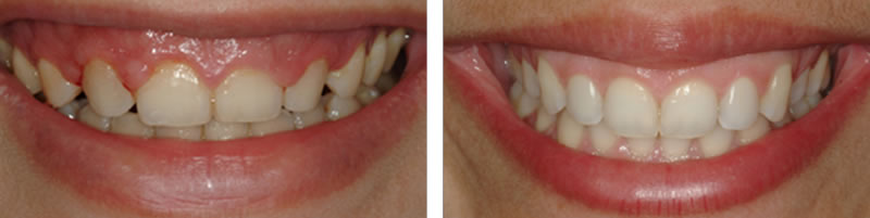 Cosmetic Dentistry- contouring