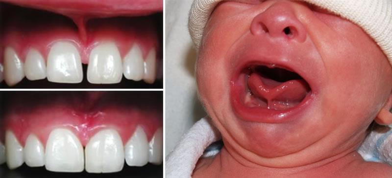 surgery2- Oral Surgery