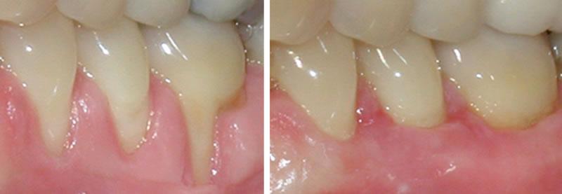 surgery4- Oral Surgery