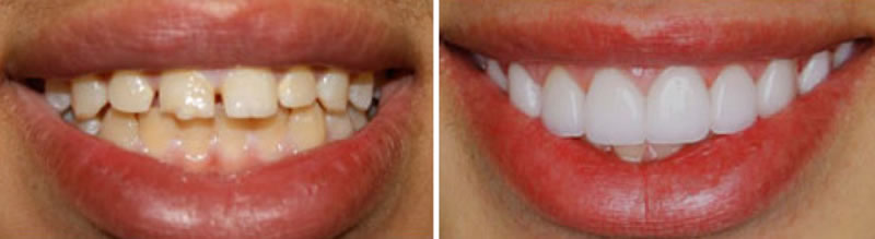 Cosmetic Dentistry- veneers