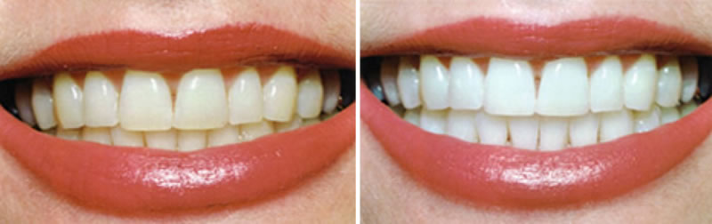 Cosmetic Dentistry- whitening